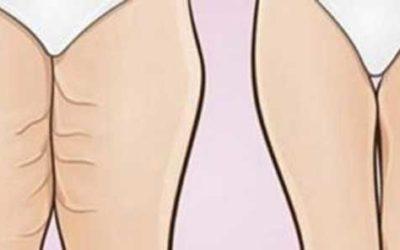 Como ter pernas e coxas tonificadas em apenas 15 dias